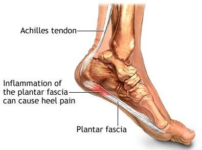 causes of plantar fasciitis